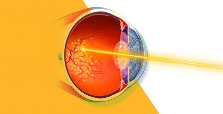 Laser-giallo micropulsato e nanopulsato catania