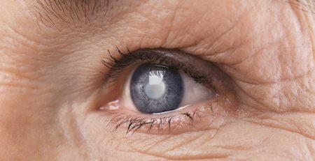 intervento di catratta catania dottor massimo filippello oculista immagine