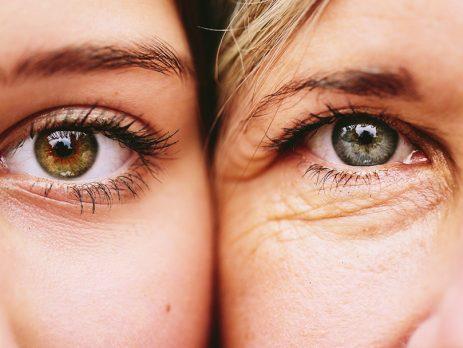 invecchiamento palpebrale, filler e tossina botulinica a catania, dottor filippello oculista