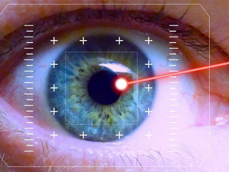 laser a eccimeri catania centro oculistico filippello copia