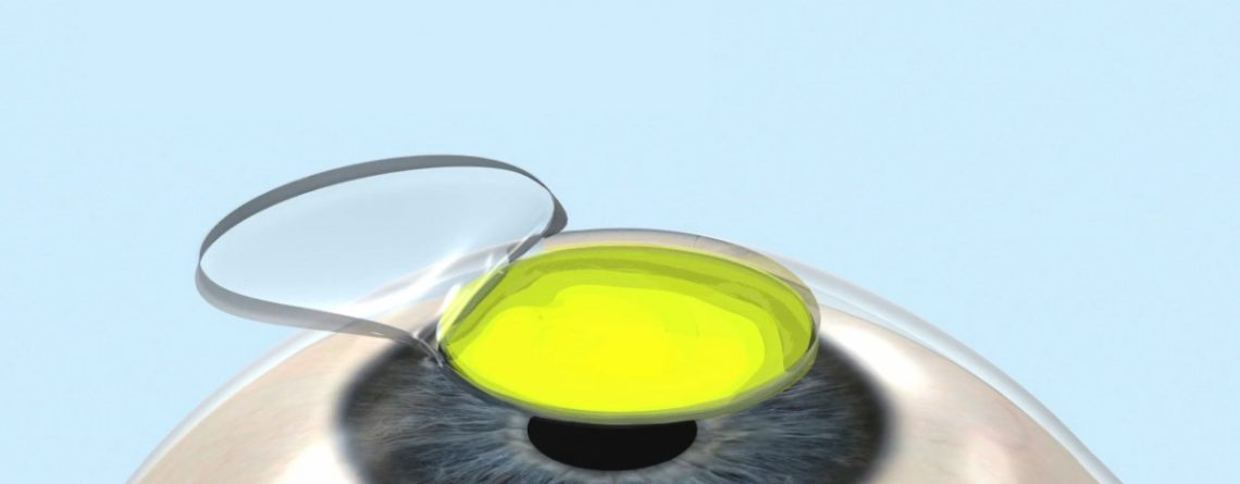 rinforzo cornea cross linking catania